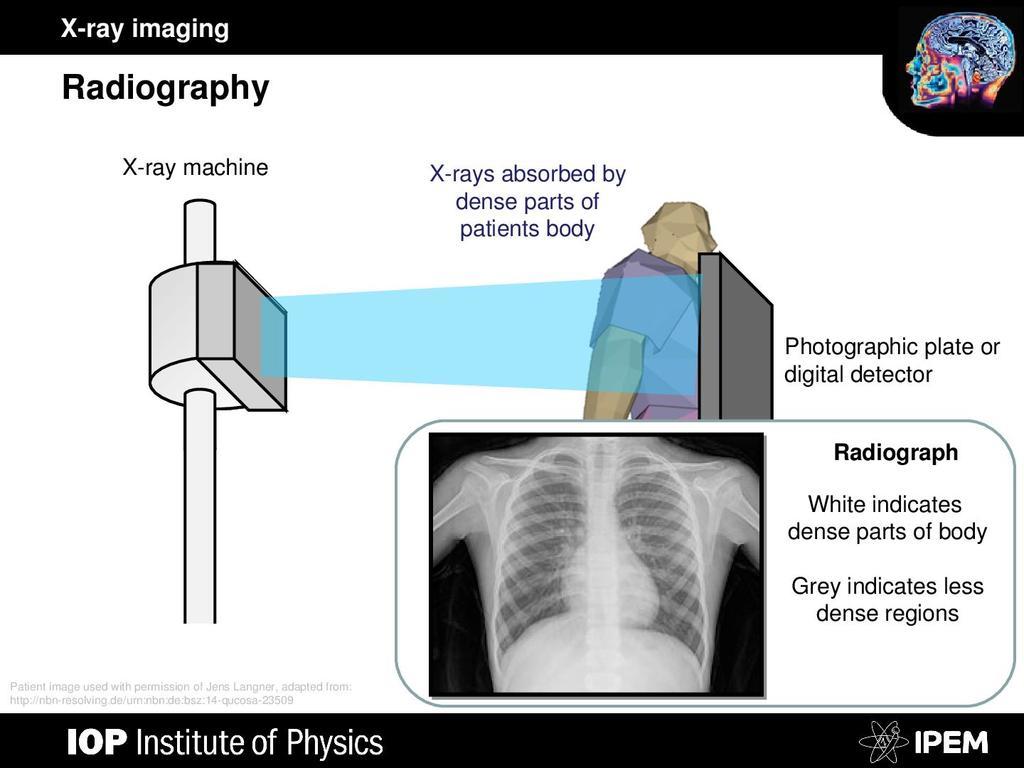 X-ray Imaging | STEM