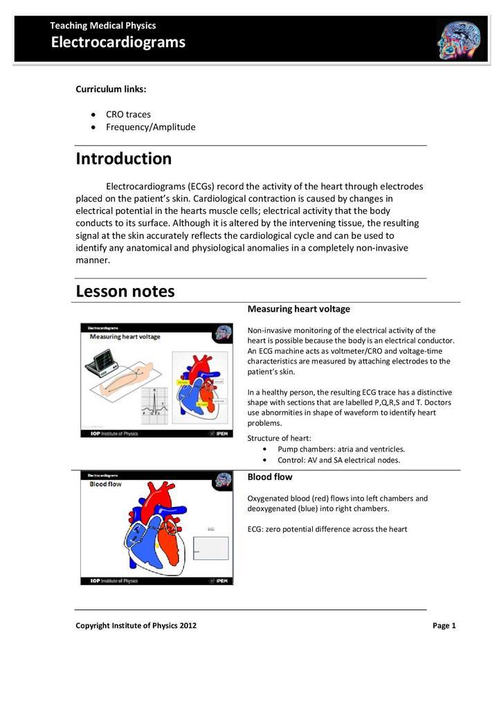 Electrocardiagrams | STEM